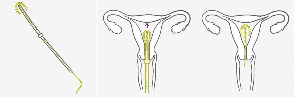 внутриматочная спираль