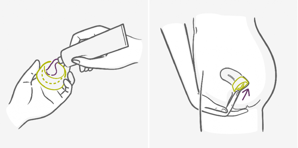 диафрагма и колпачок - использование