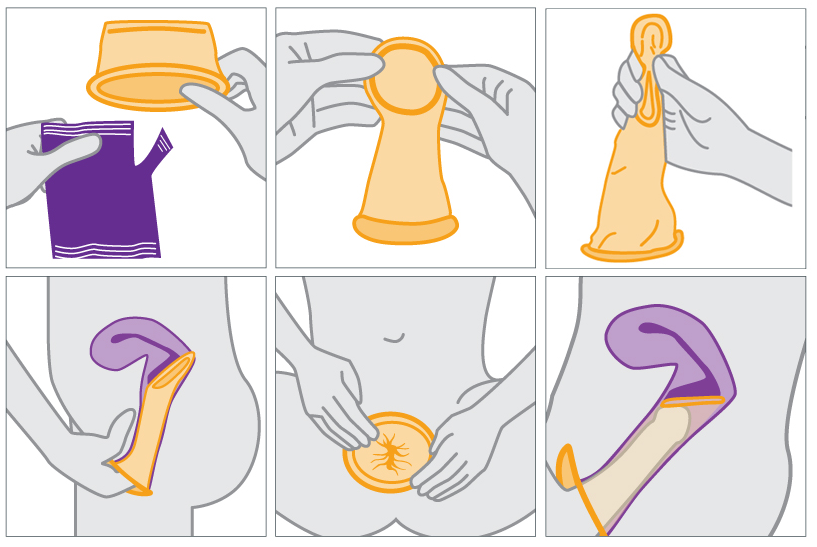 female_condom_use