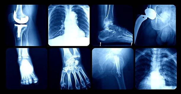 рентген при беременности